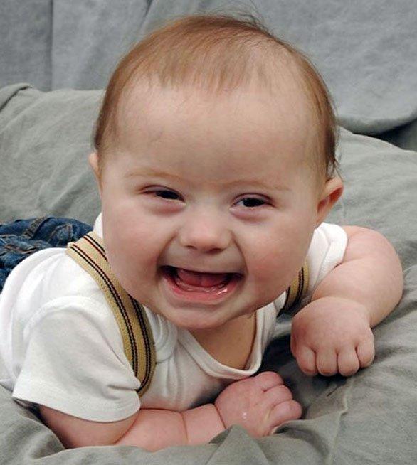 Bebelusul meu nenascut sufera de sindromul Down